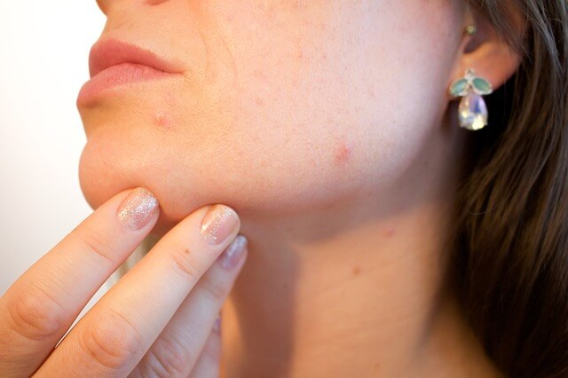 symptoms-of-vitamin-and-mineral-deficiency-acne