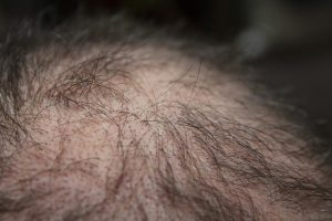 symptoms-of-vitamin-and-mineral-deficiency-hair-loss